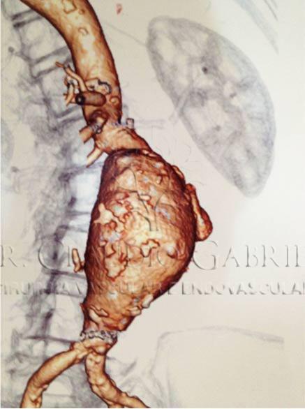 Reconstrucao3D-Angiotomografia