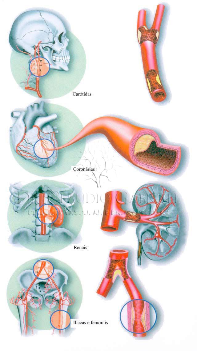 img-aterosclerose1
