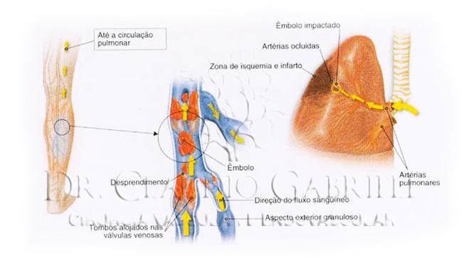 img-complicacoes-trombose