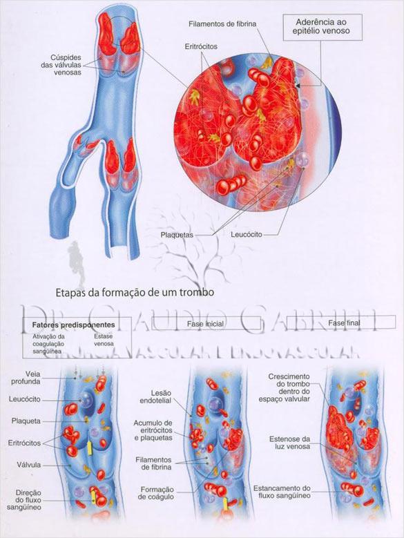 img-trombose